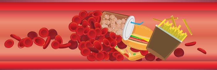 cholesterol-junk