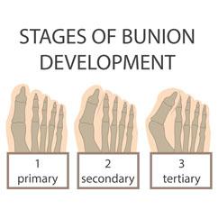 bunion