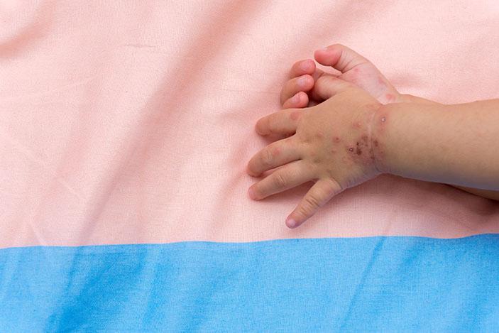 bed-hands