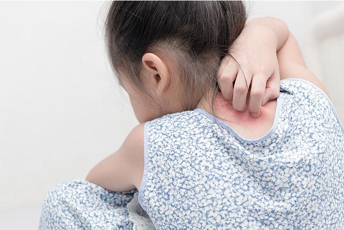 eczema scratching